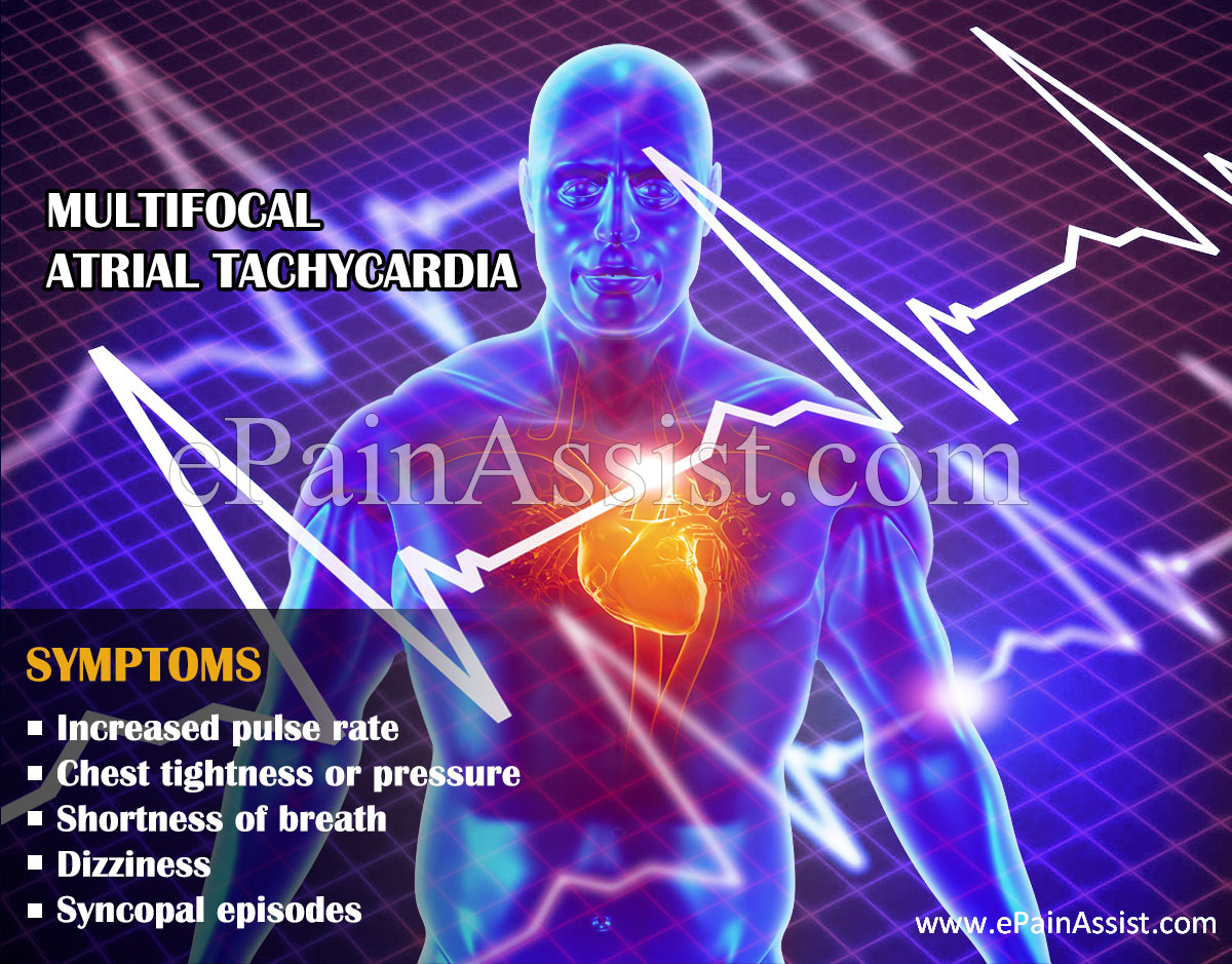 Symptoms of Multifocal Atrial Tachycardia
