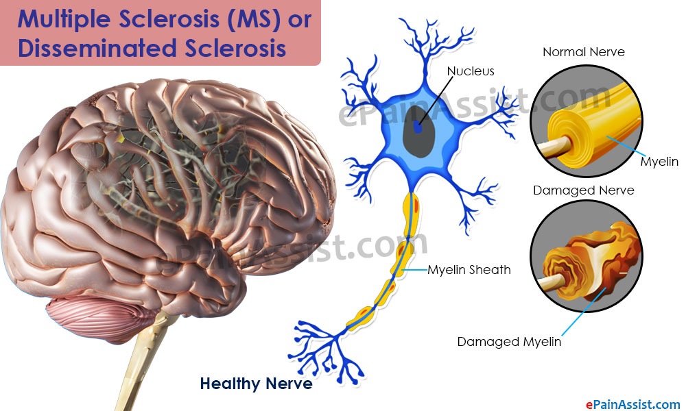 Pathophysiology of Multiple Sclerosis