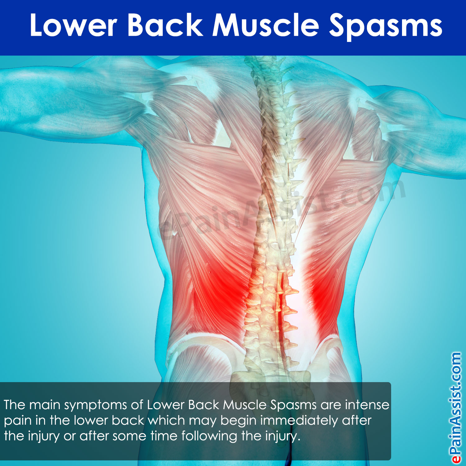 Lower Back Muscle Spasms Treatment Causes Symptoms