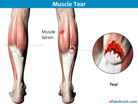 Partial Leg Pain Caused By Muscle Diseases