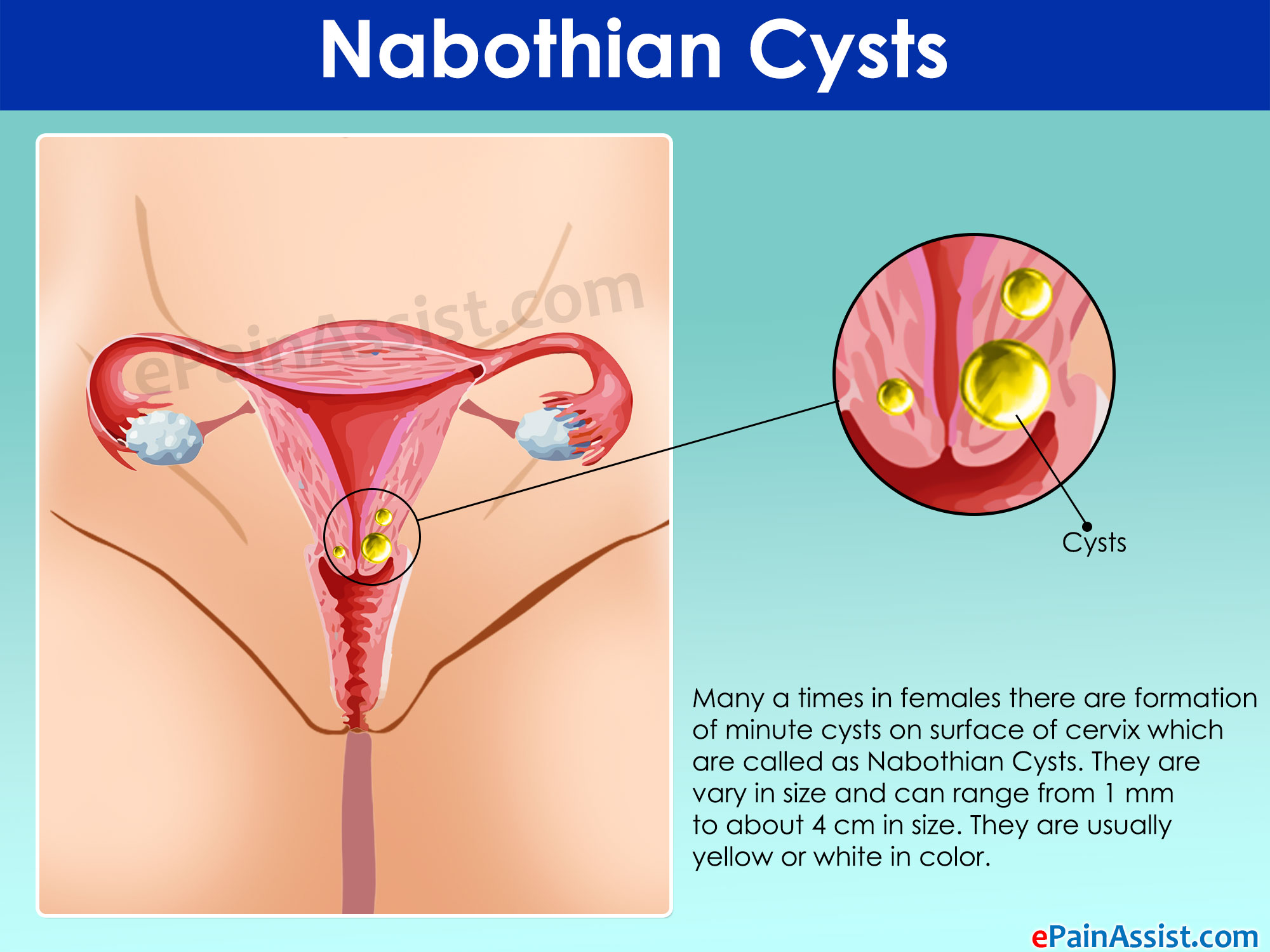 what are nabothian cysts and how is it treated?, Skeleton