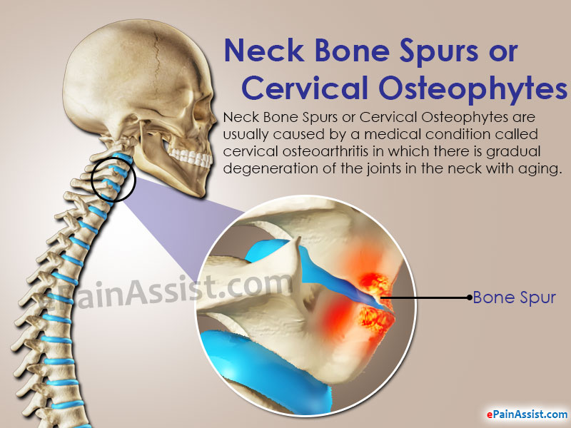 Neck Bone Spurs or Cervical Osteophytes