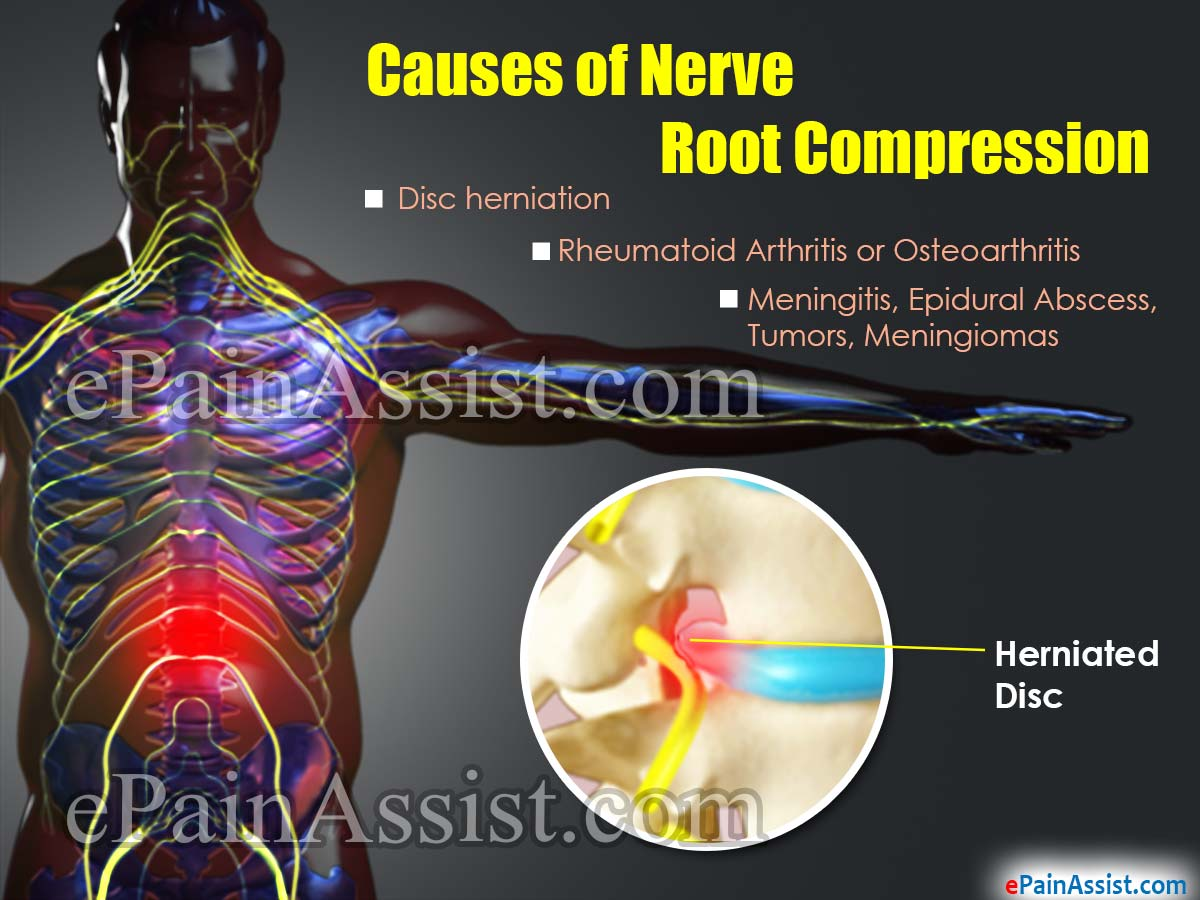 Nerve Root Compression