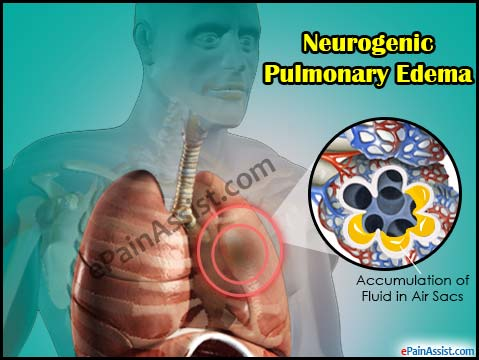 Neurogenic Pulmonary Edema