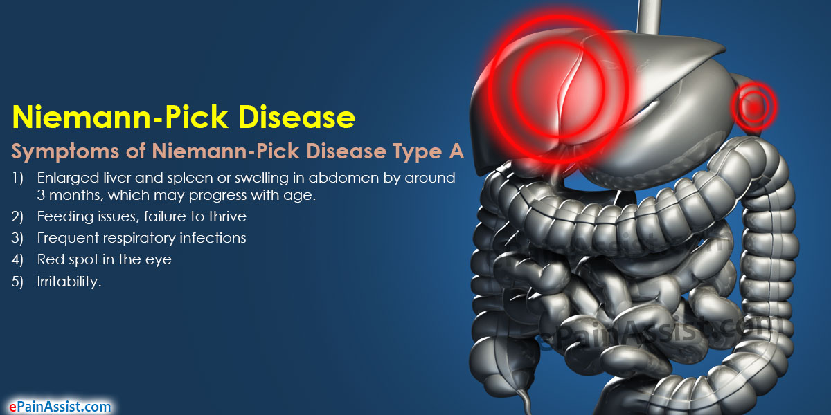 niemann picks disease Niemann-pick disease is a rare hereditary condition that affects 1 in 15,000 people but can be extremely life-threatening read and know what niemann-pick disease is as well as its causes, symptoms, diagnosis and treatment.