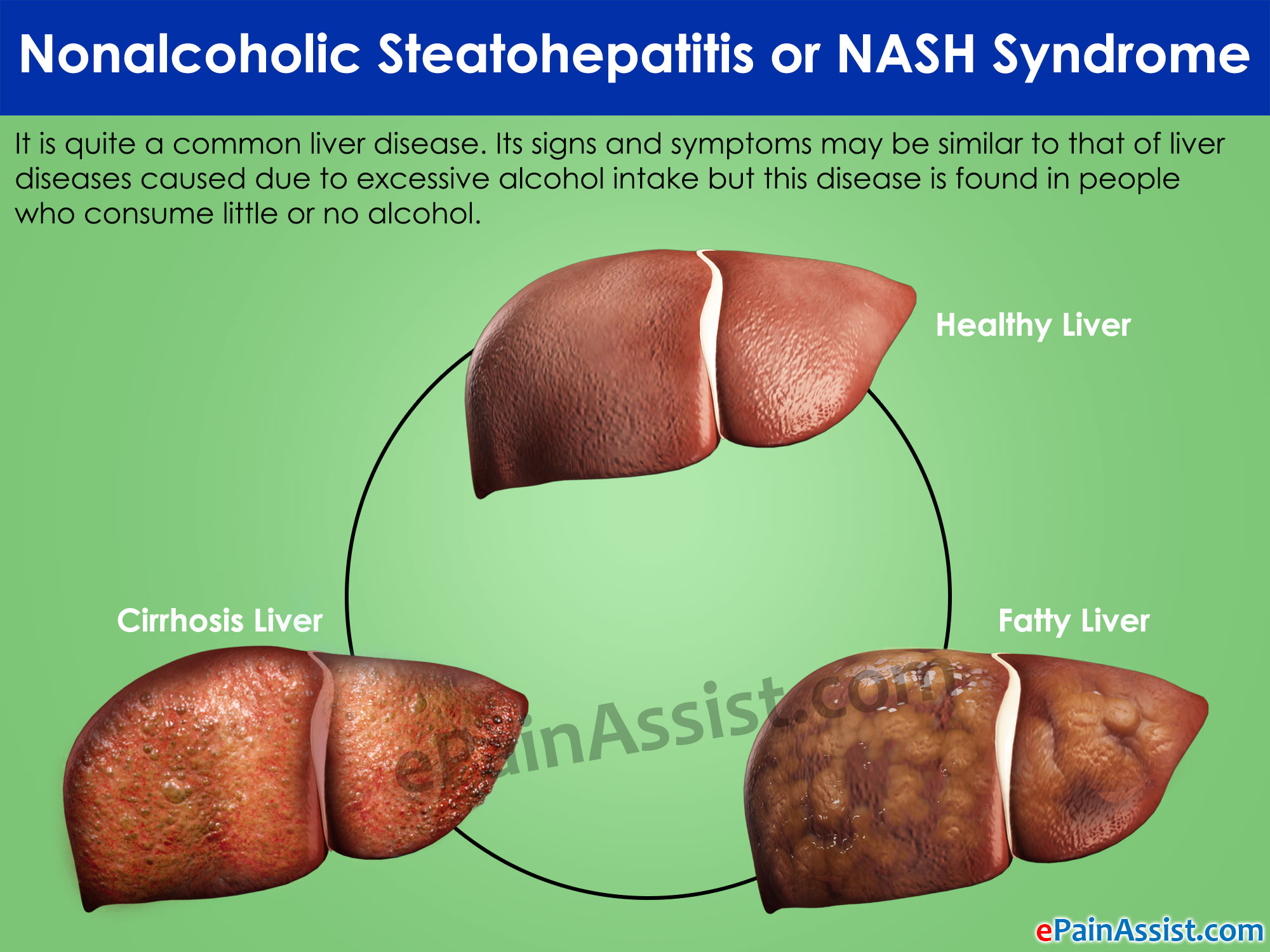 Nonalcoholic Steatohepatitis or NASH Syndrome