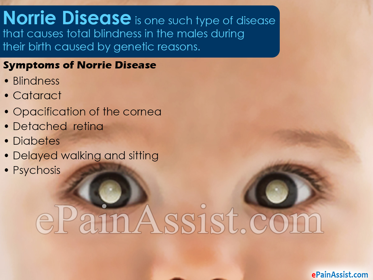 Norrie Disease Symptoms Treatment Pathophysiology Causes