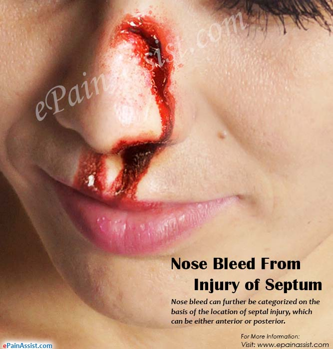 Nose Bleed From Injury Of Septum Or Turbinate