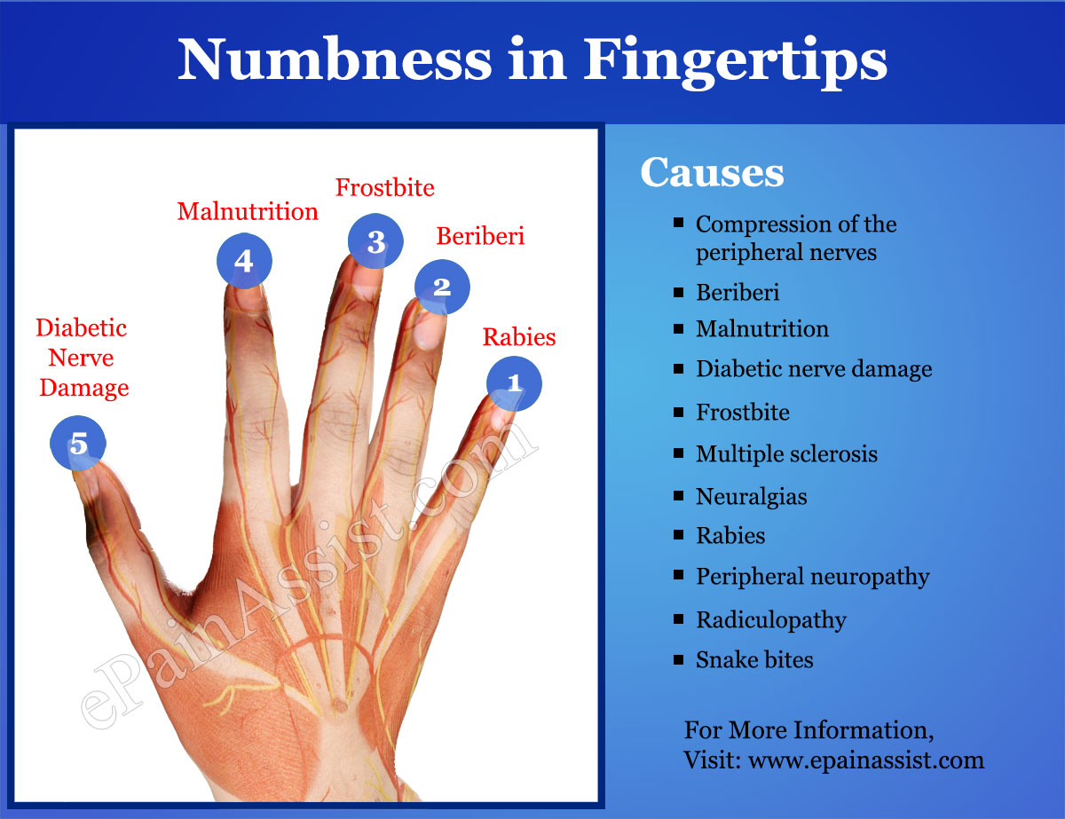 Causes of Numbness in Fingertips
