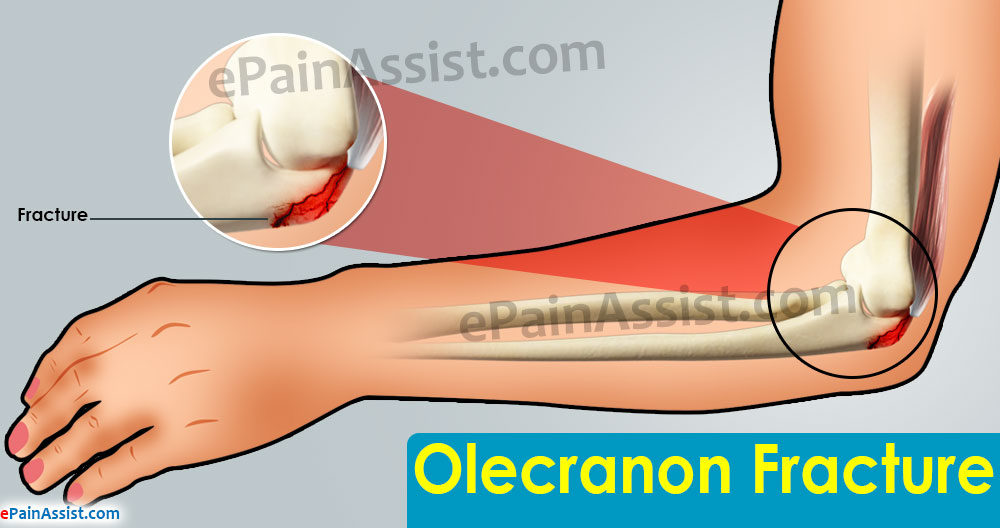 plate osteosynthesis for severe olecranon fractures An olecranon fracture is a break in the bony tip of the in severe fractures plates, or wires may shift or break this can occur for a number of.