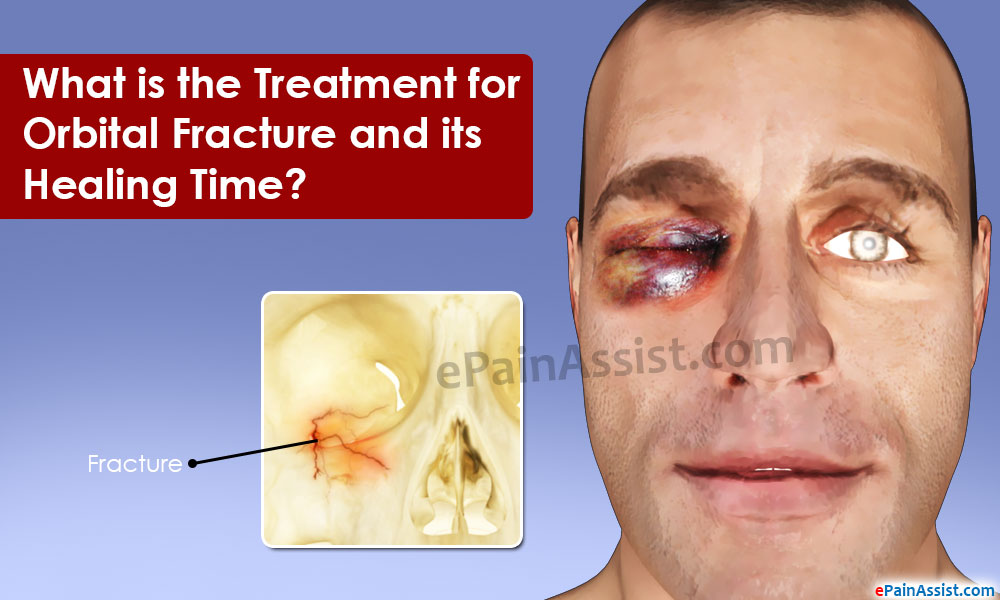 Orbital Fracture and its Healing Time