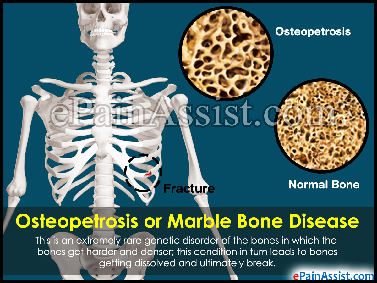 Osteopetrosis or Marble Bone Disease
