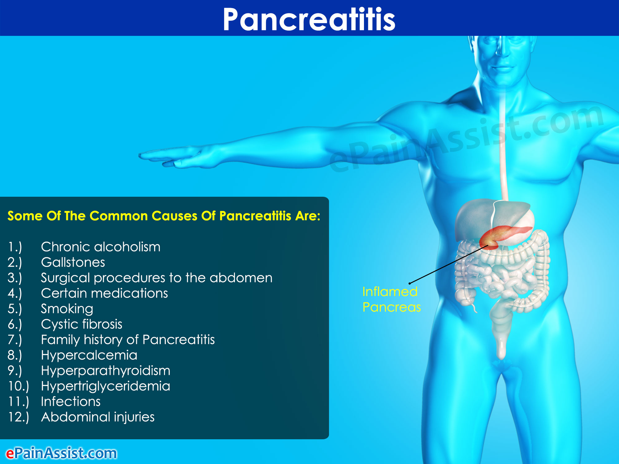 what is pancreatitis|treatment|symptoms|causes|diet|home remedies, Human Body