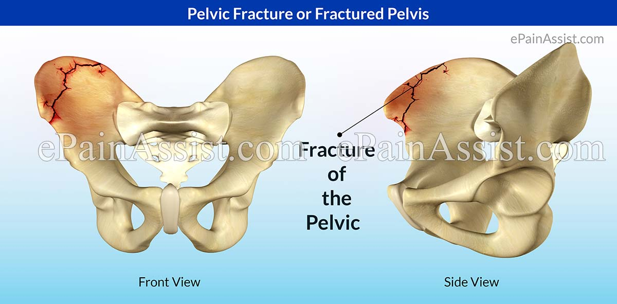 how to fix a cracked pelvis