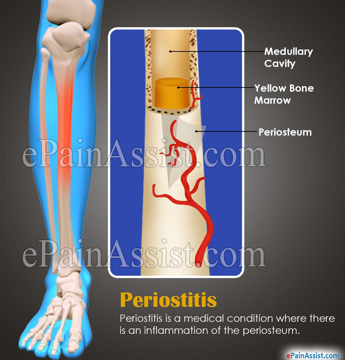 Overview on Periostitis