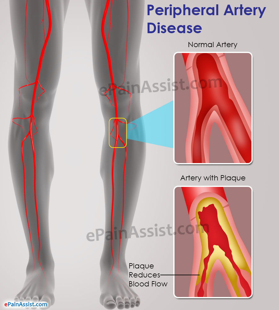 Pathophysiology disease body