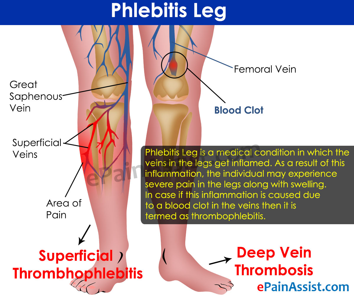 What Is Phlebitis Leg And How Is It Treated