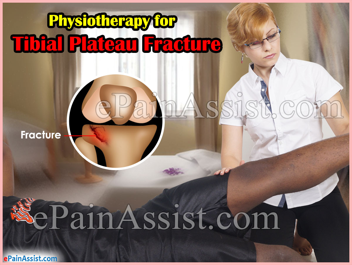Physiotherapy and Recovery for Fractured Tibial Plateau