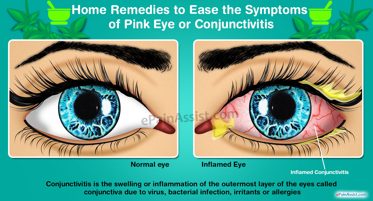 Pink Eye or Conjunctivitis