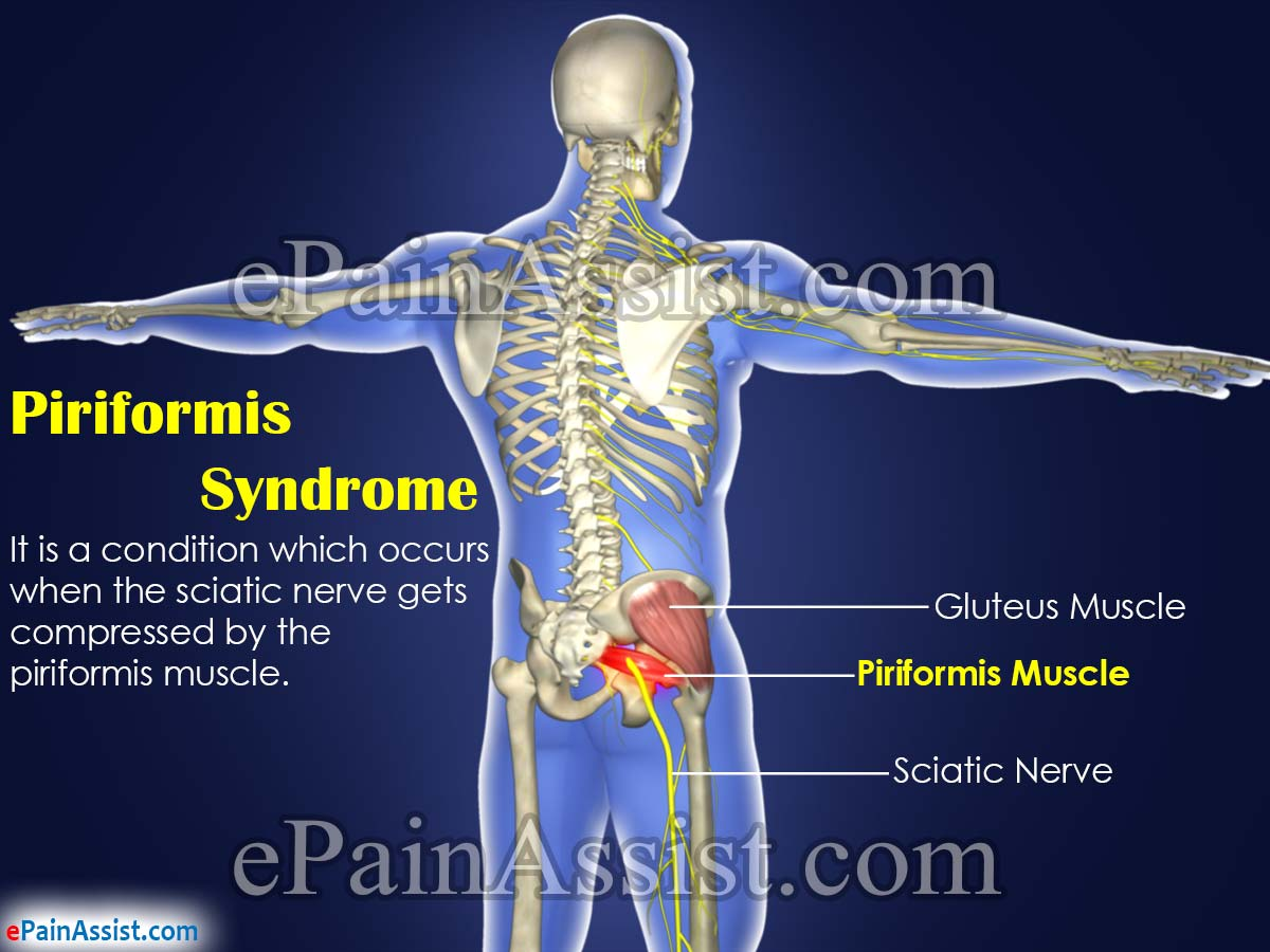 sciatic nerve and erectile dysfunction