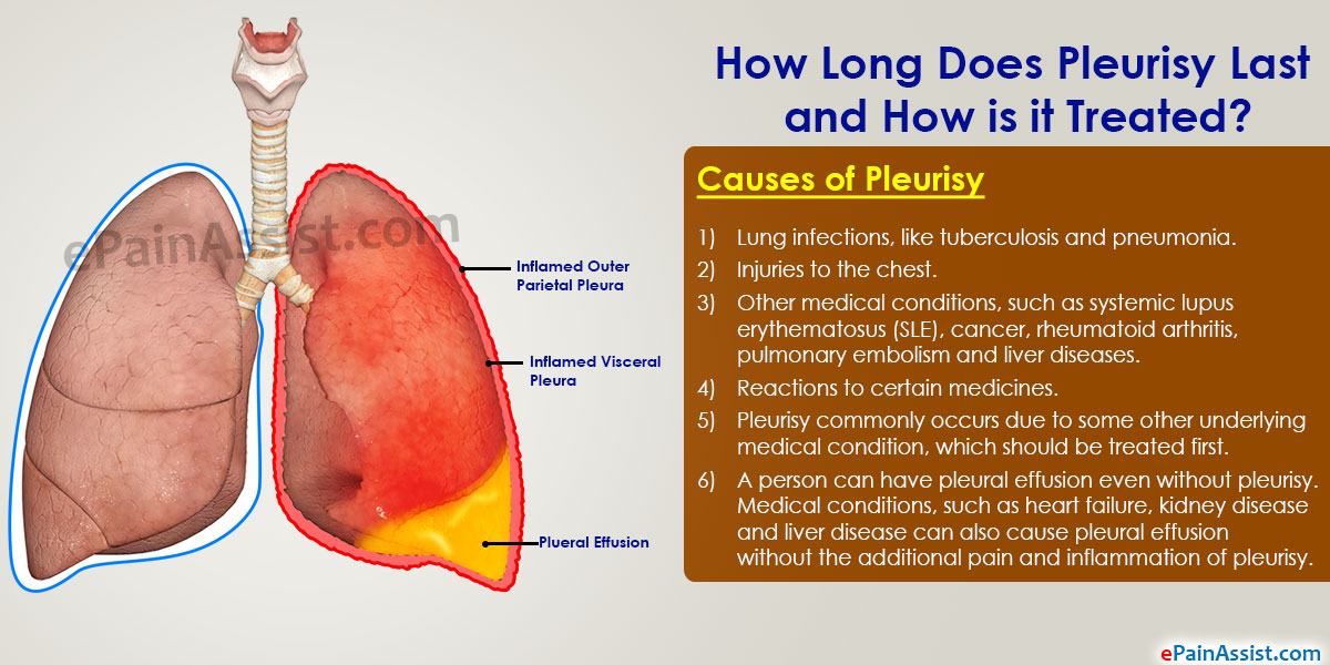 How Long Does Pleurisy Last And How Is It Treated