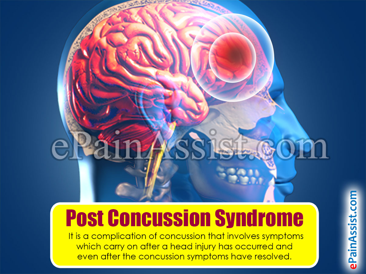 Post Concussion Syndrome