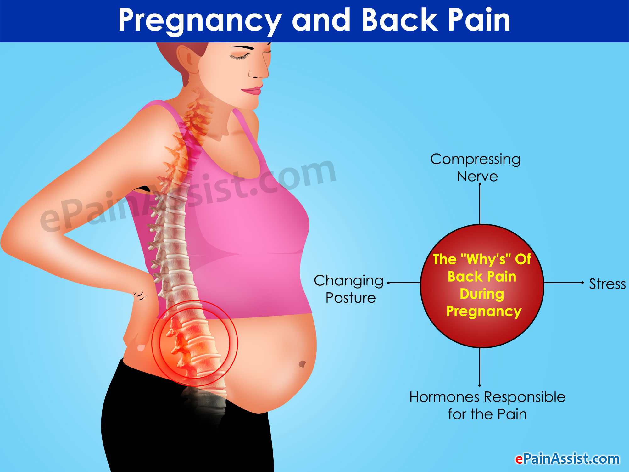 Pregnancy And Back Pain The Whys And The Remedies