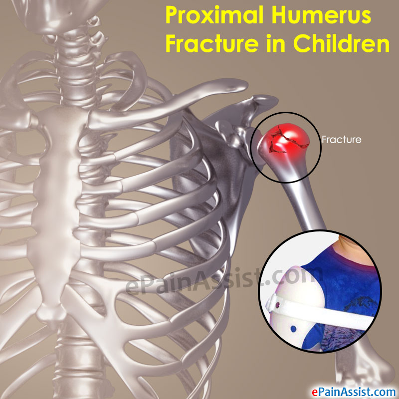 Proximal Humerus Fracture In Children Treatment Complications