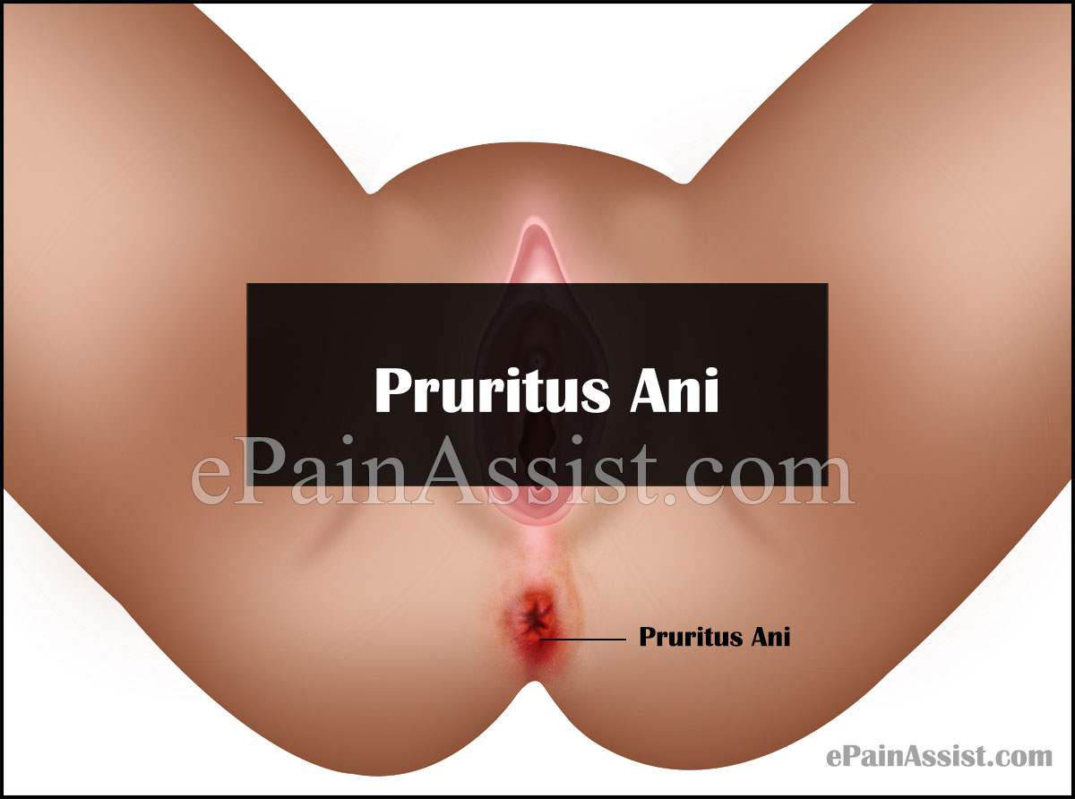 Pruritus Ani Itching in Anus