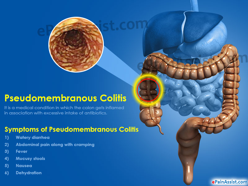 What Is Pseudomembranous Colitis And How Is It Treated