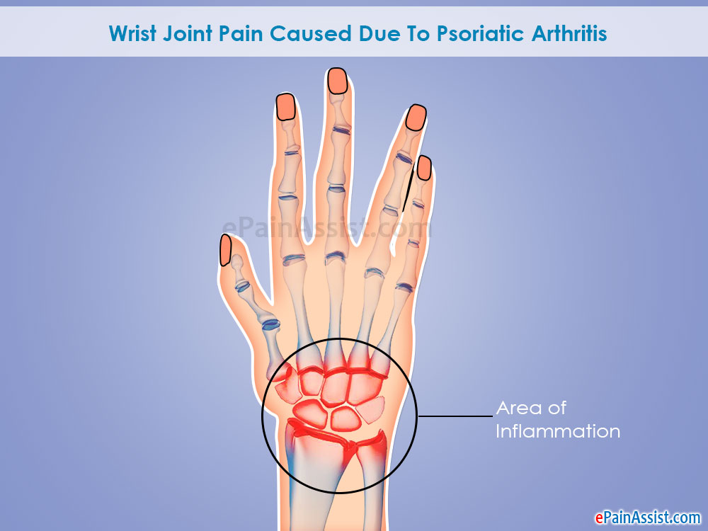 Wrist Joint Pain Caused Due To Psoriatic Arthritis