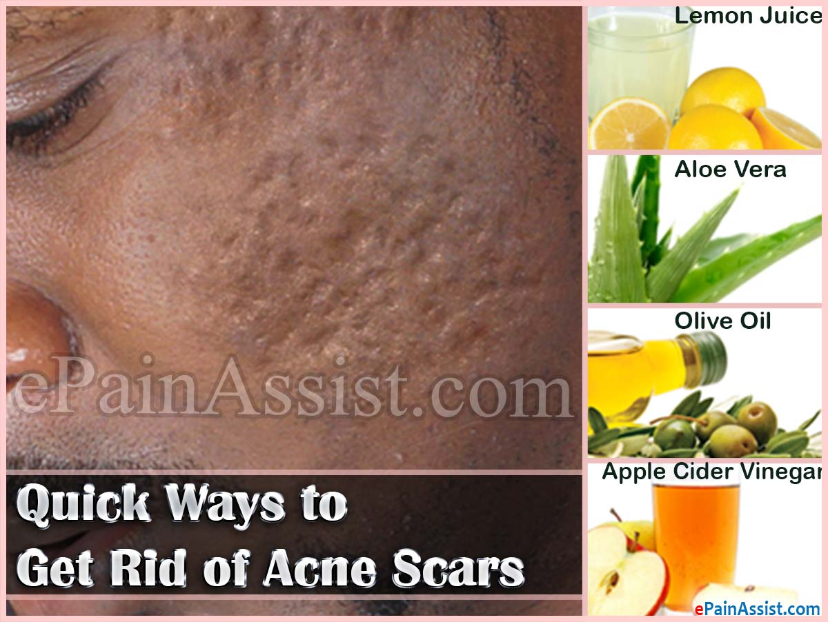 Acne Scars Best Natural Treatment