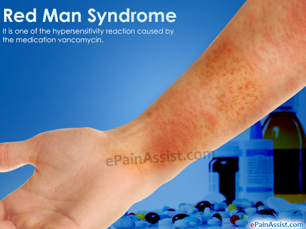 red man syndrome