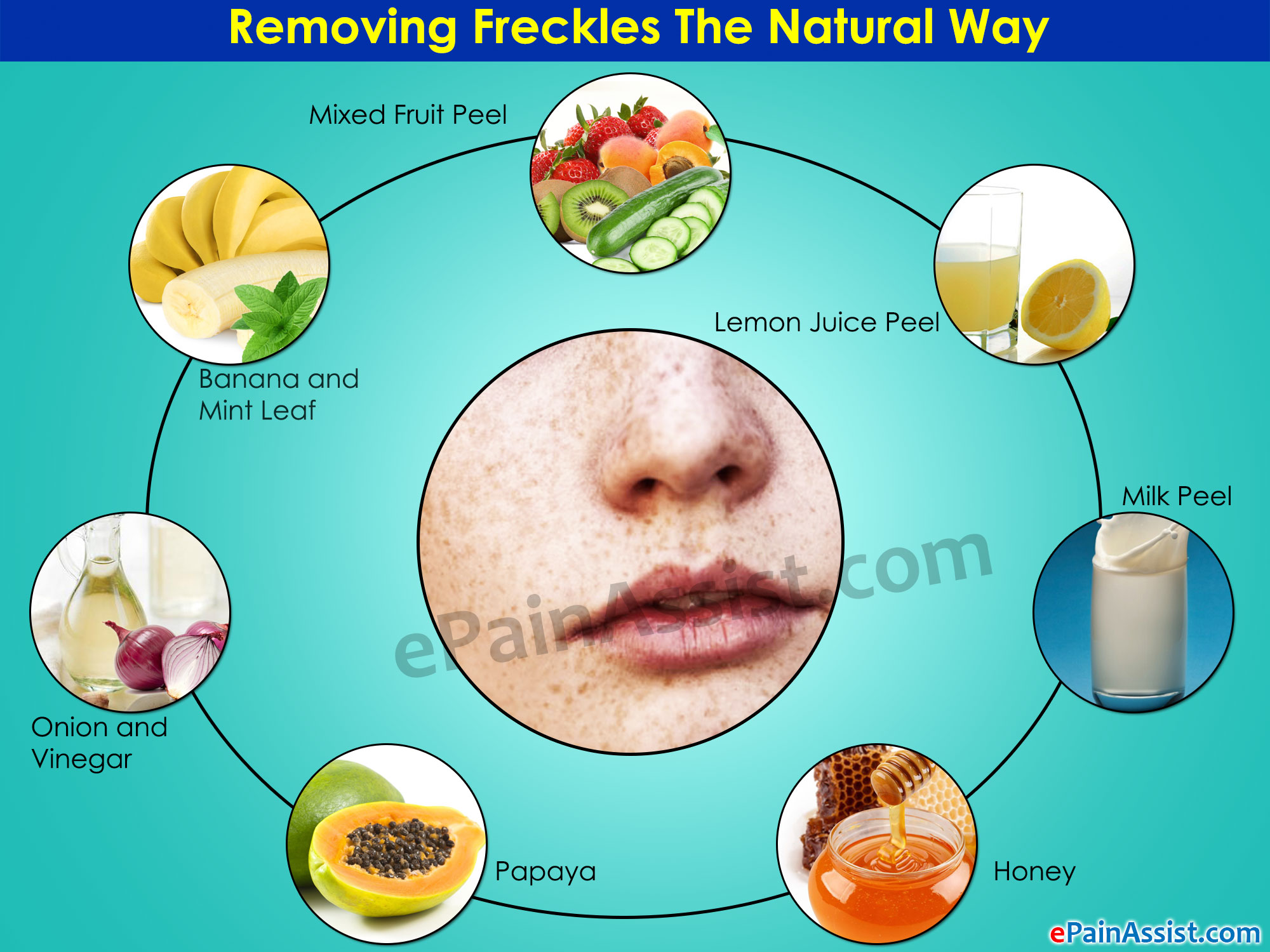 Remove Freckles The Natural Way