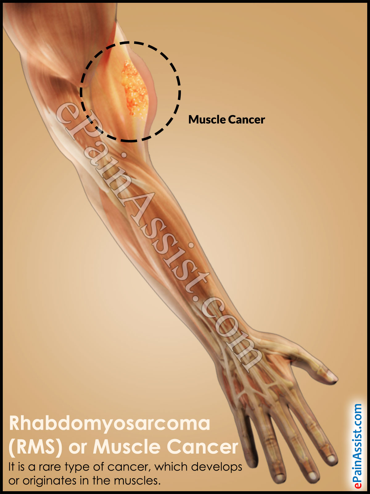 Rhabdomyosarcoma or Muscle Cancer