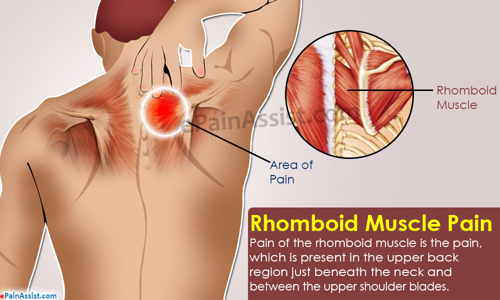 Rhomboid Muscle Paincausessymptomstreatmentexercisesprevention