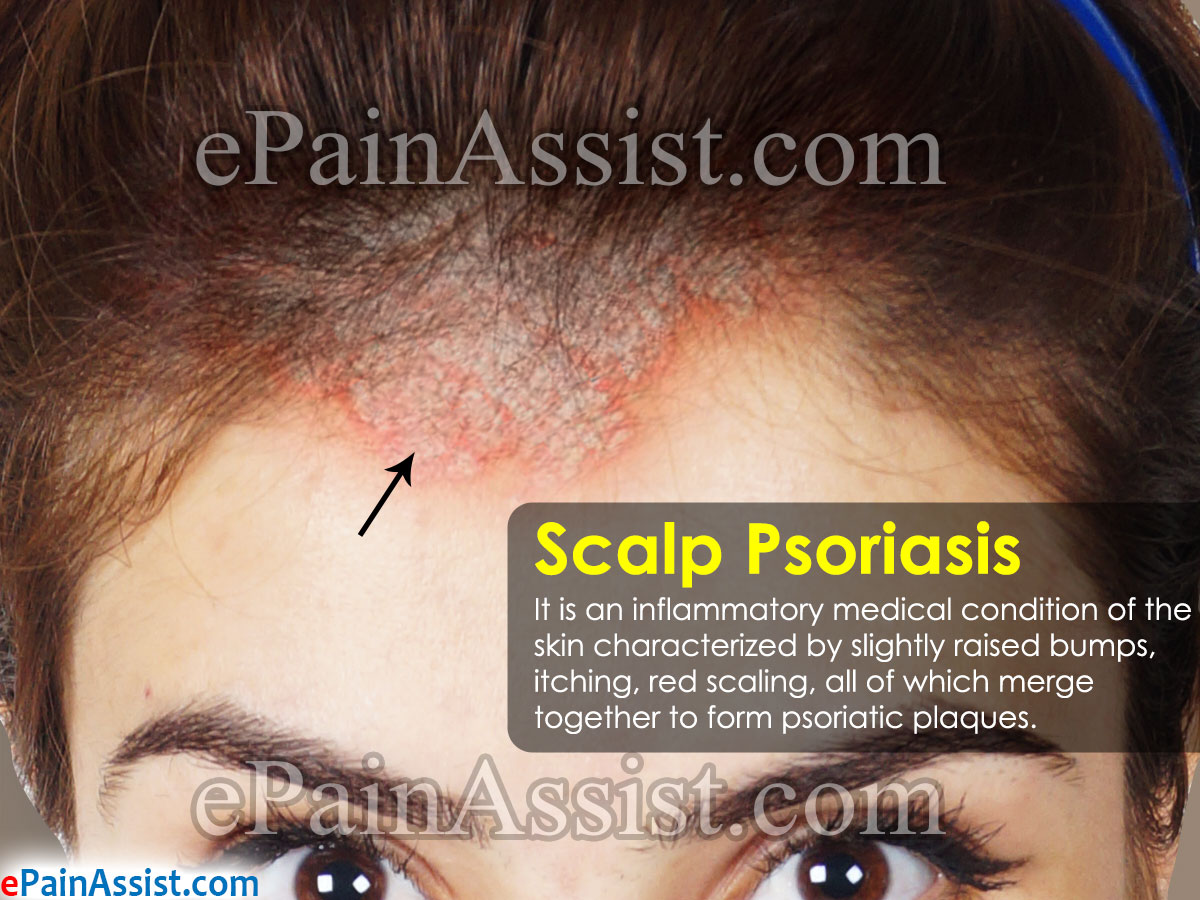 It could also be psoriasis on the scalp 2