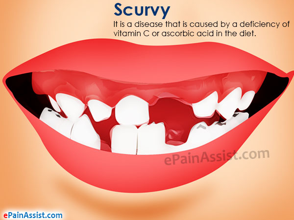 Scurvy Causes Signs Symptoms Treatment Home Remedies