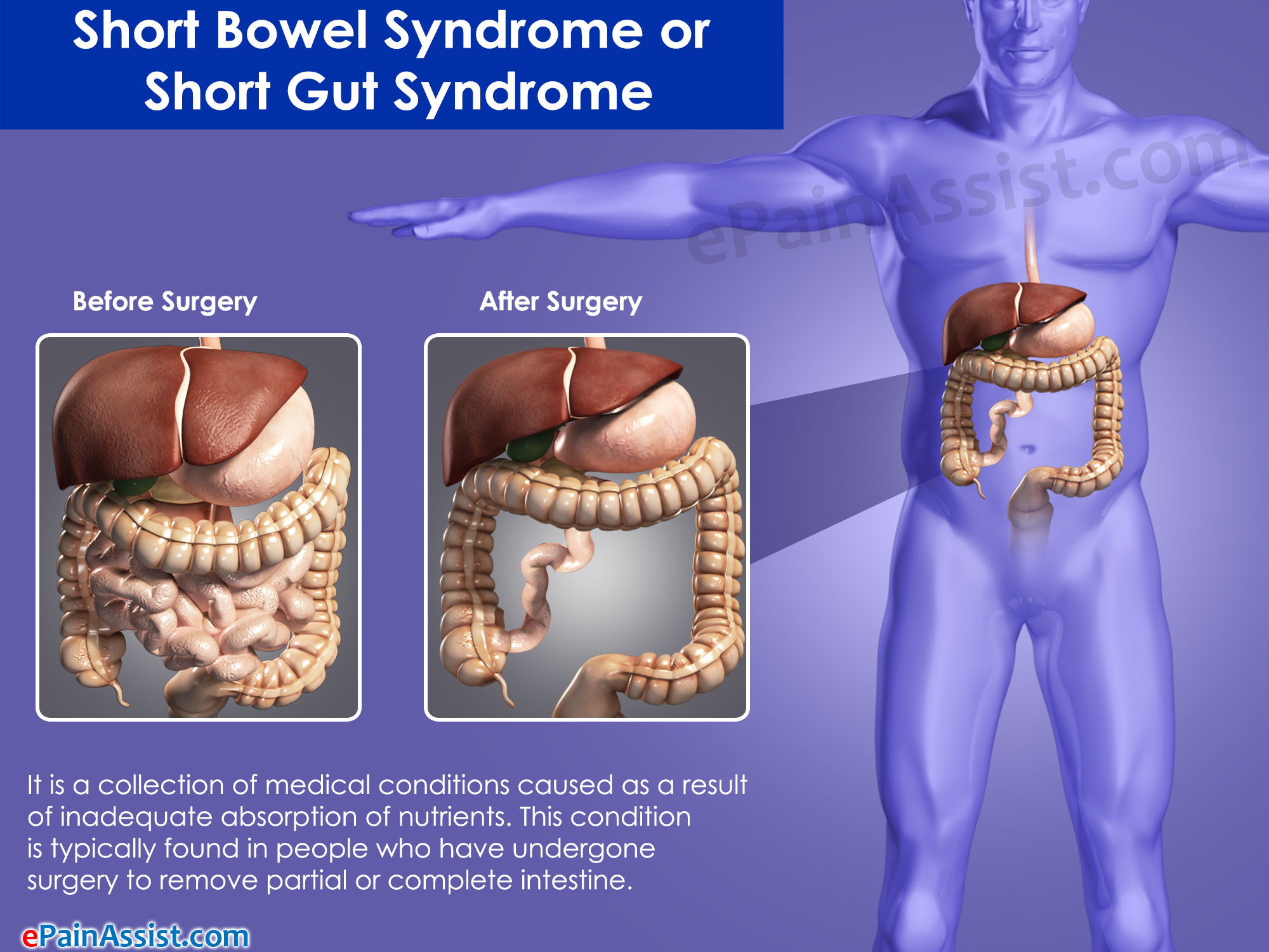 Symptoms Of Short Bowel Syndrome Or Short Gut Syndrome