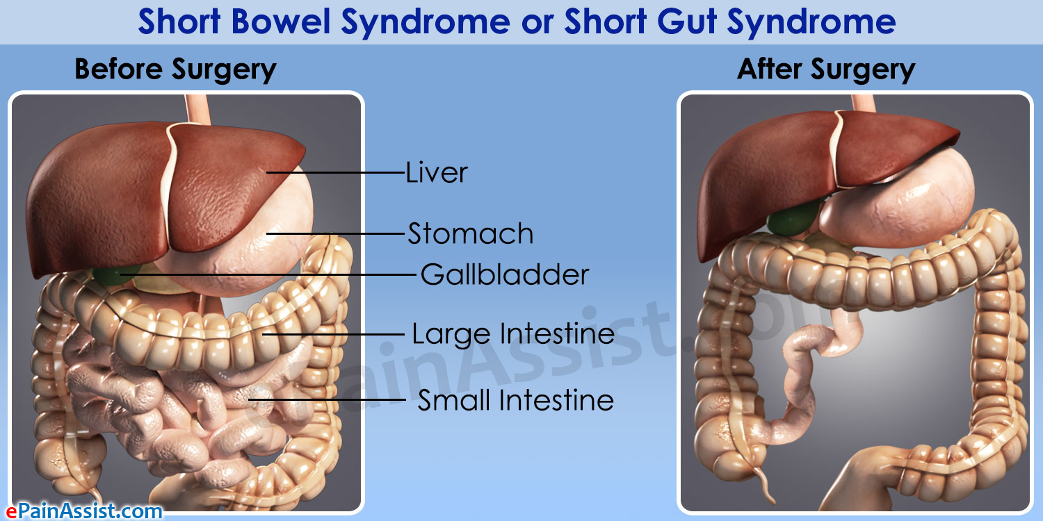 Inversion of the bowels: symptoms, causes, treatment
