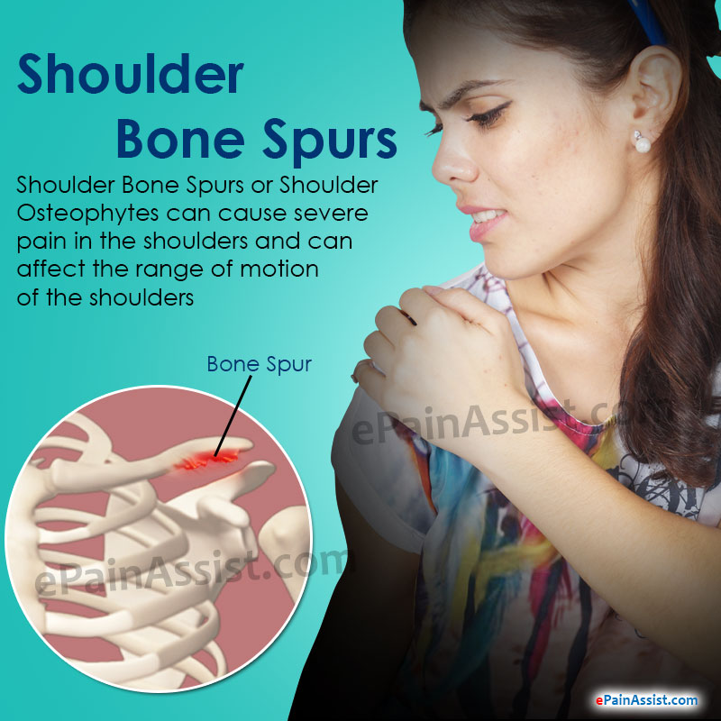 Shoulder Bone Spurs