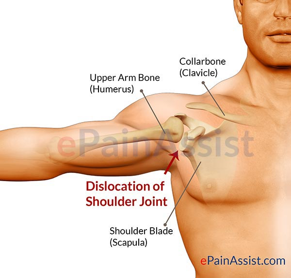 8 causes of shoulder joint pain: trauma, arthritis, sprain, Human body