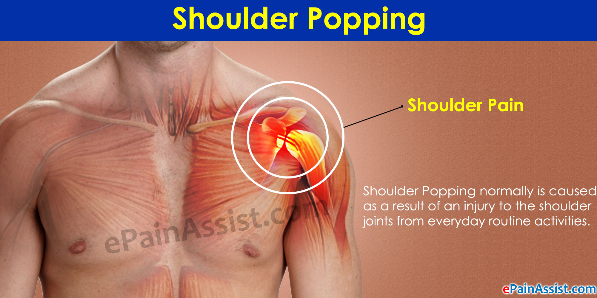 Shoulder Popping Causes And Treatment