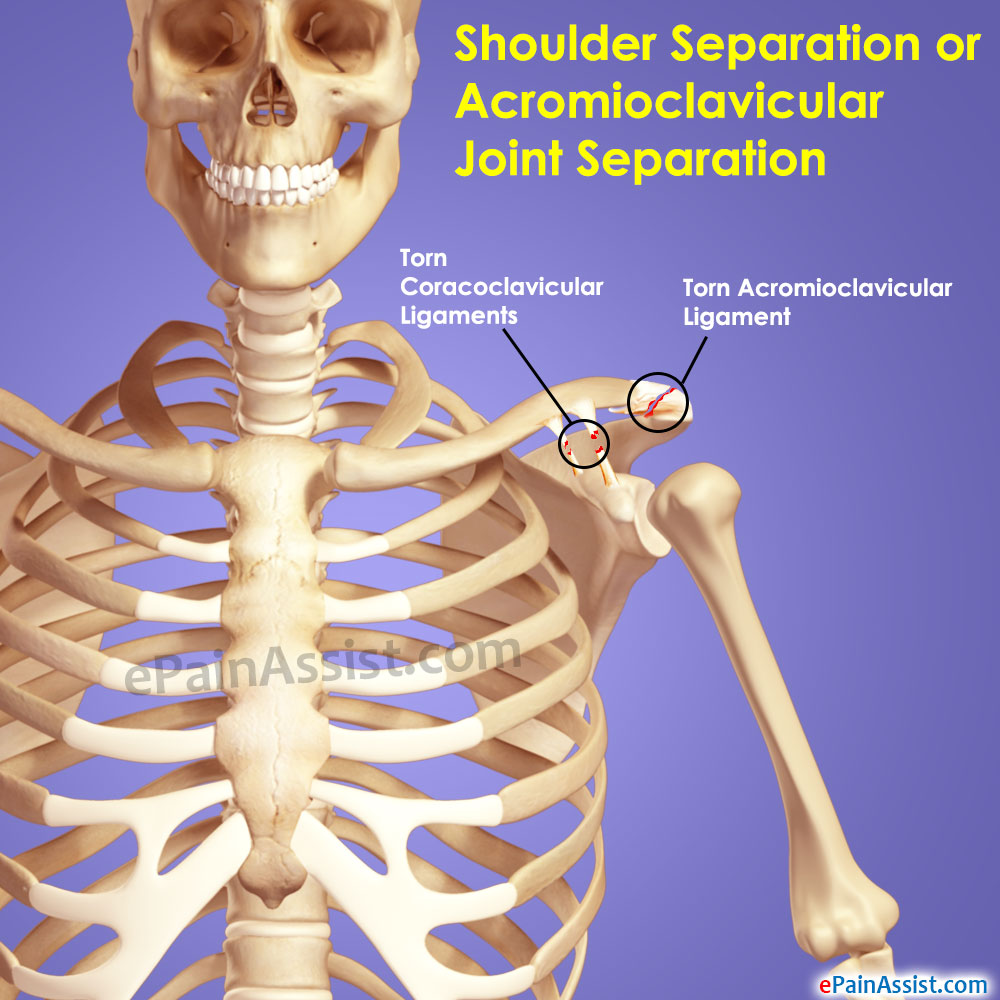 Shoulder Separation Treatment Exercise Causes Symptoms