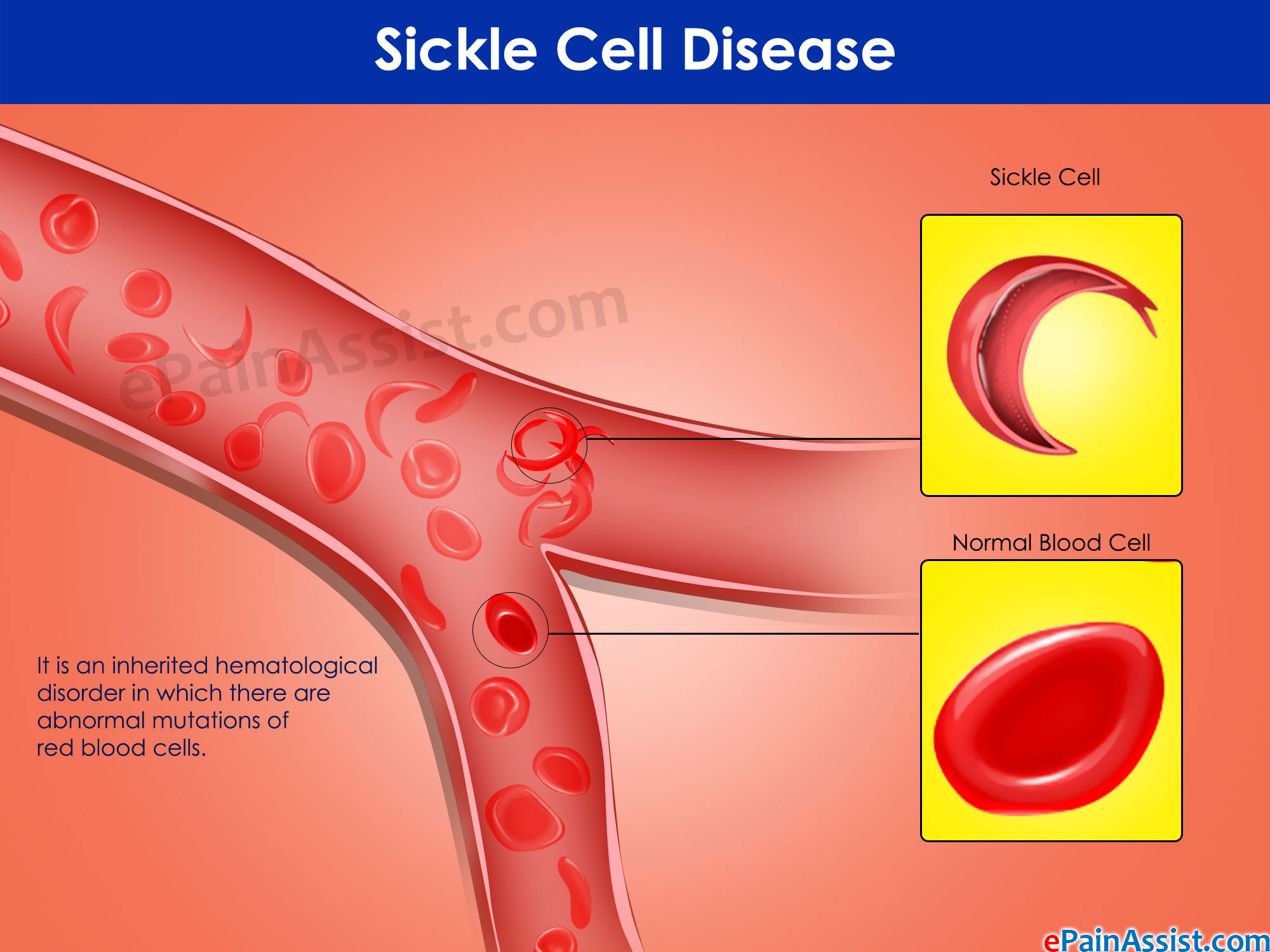Sickle Cell Disease And Disability Benefits