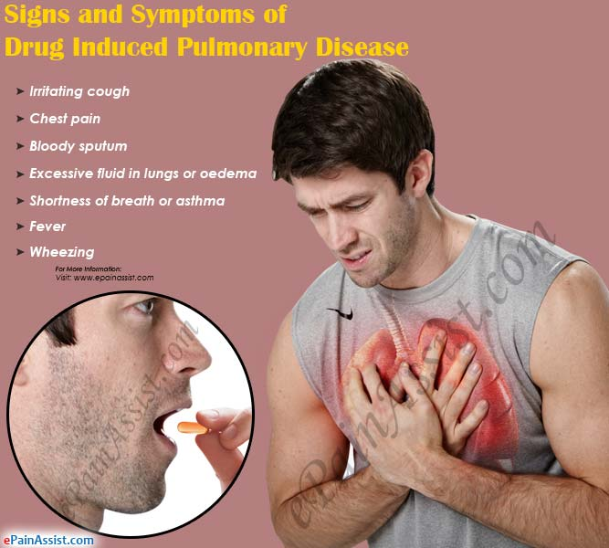 What Is Drug Induced Pulmonary Diseasecausessymptoms. Clothing Boutique Signs. Cute Zodiac Signs. World Diabetes Day Signs. Edukasi Signs Of Stroke