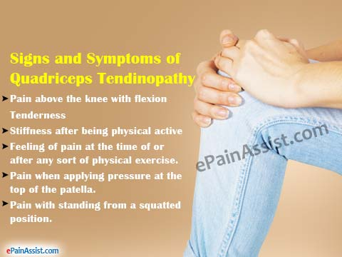 Signs and Symptoms of Quadriceps Tendinopathy