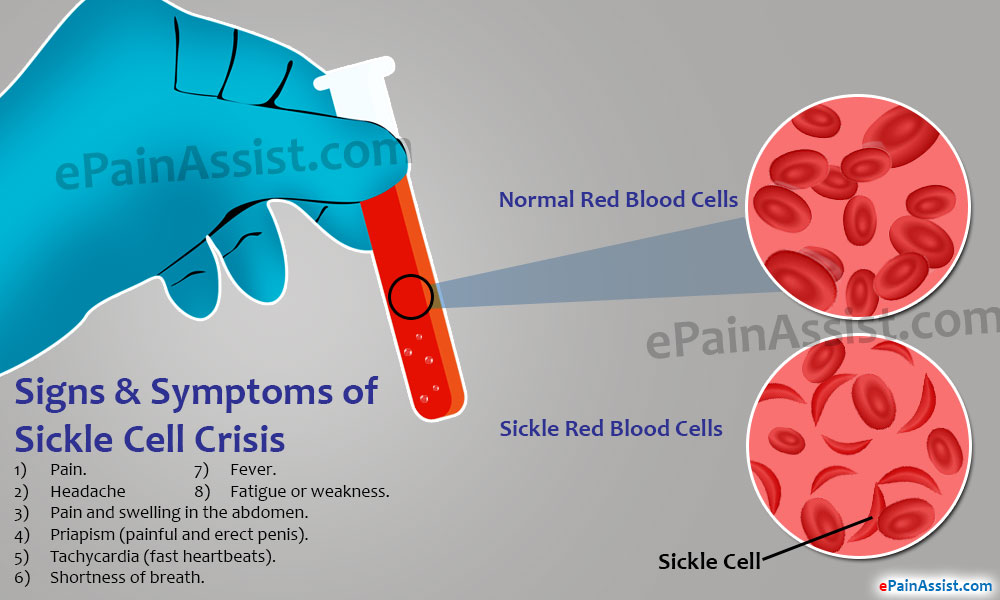 Signs & Symptoms of Sickle Cell Crisis