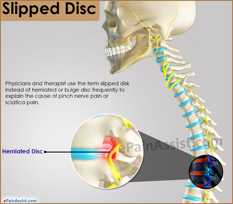 Slipped Disc: Treatment, Prevention, Symptoms, Signs