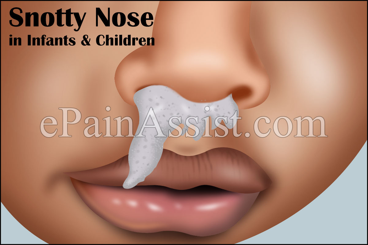 Snotty Nose in Infants